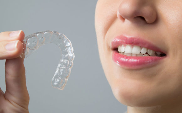 Ortodontia Digital – Invisalign